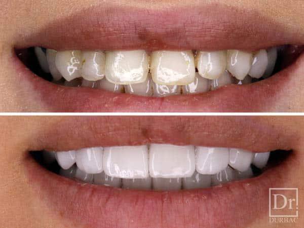fatete dentare inainte si dupa