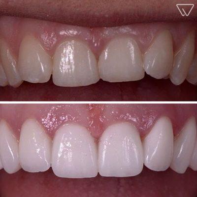 Fatete dentare avantaje si dezavantaje 4