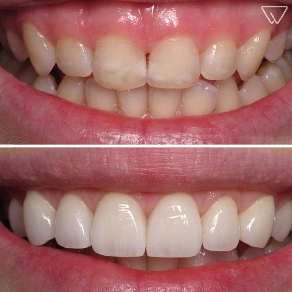 Fatete dentare Emax 11