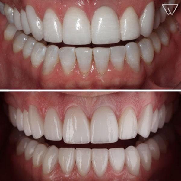 Fatete dentare Emax 9