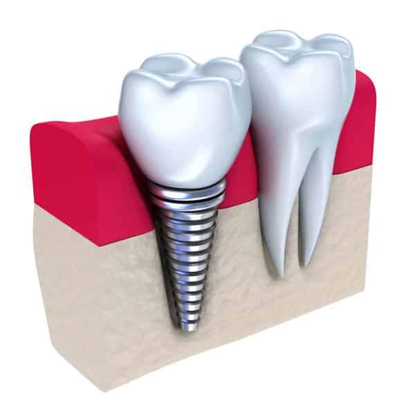 Implant dentar 1