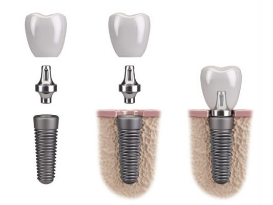 Implant dentar 3