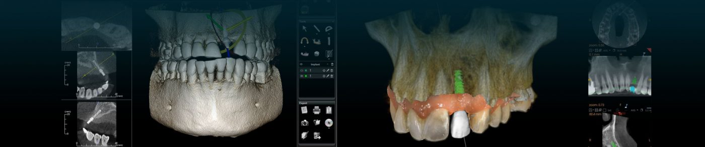 Implant dentar la Delta Clinic Dent