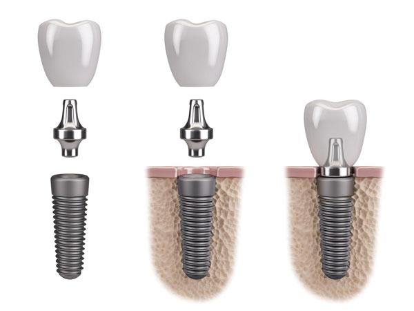 All on 4 si all on 6 implant dentar 2