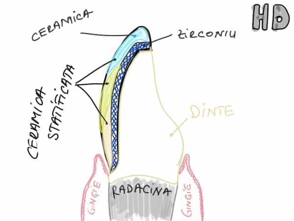 Fateta dentara ceramica