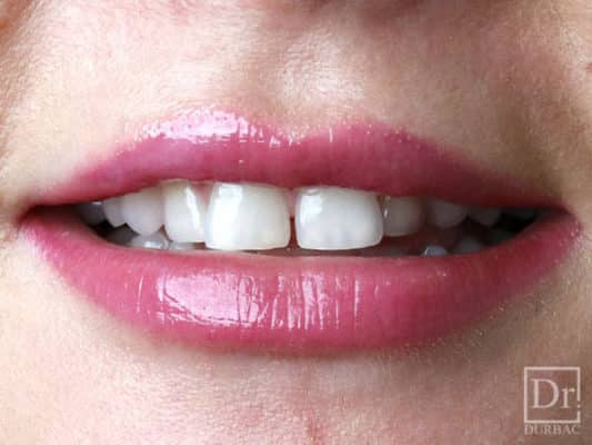 fatete dentare pareri