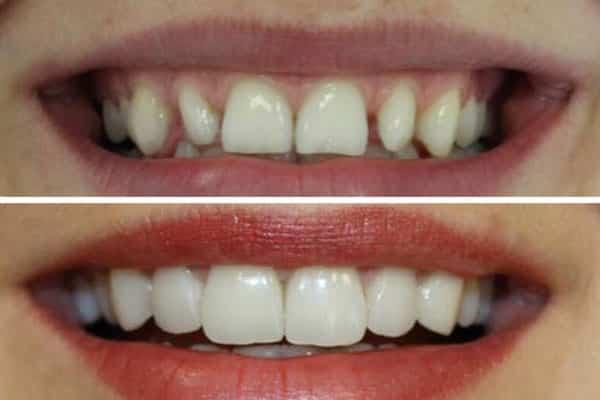 Fatete dentare Emax 7