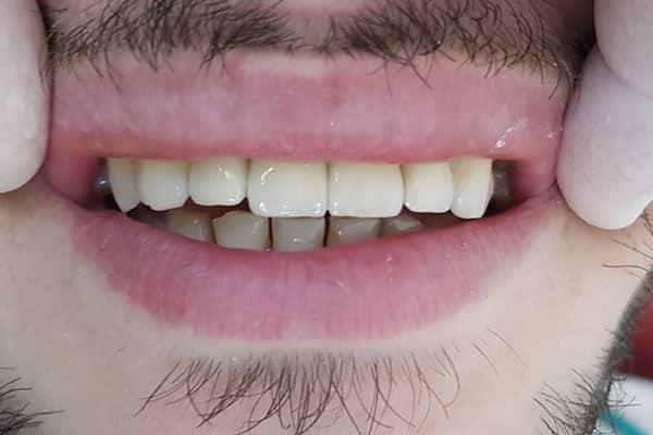 fatete dentare zirconiu