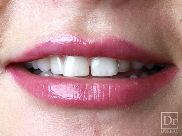 Fatete-dentare-Dr-Durbac-Bucuresti-Inainte-caz-83-5