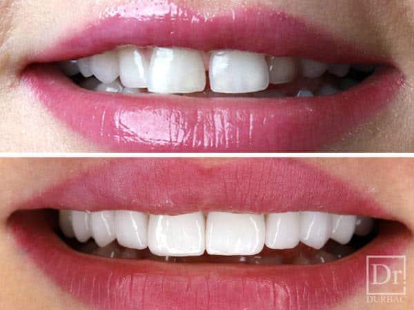 Fatete-dentare-Fara-slefuire--Dr-Durbac-Bucuresti-Inainte-si-dupa-caz-83-5