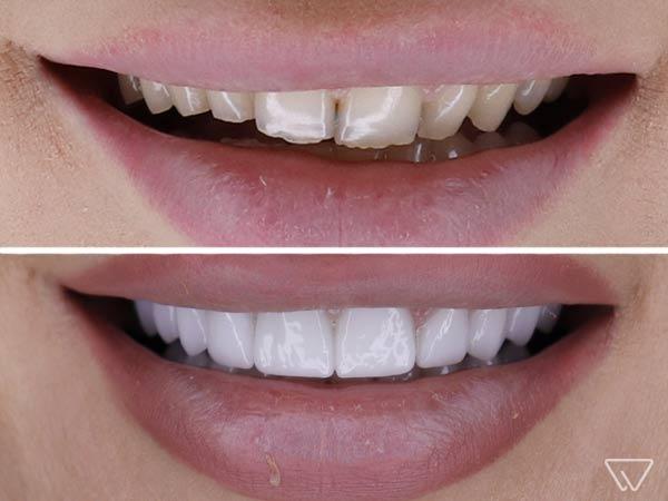 Fatete dentare Emax 8