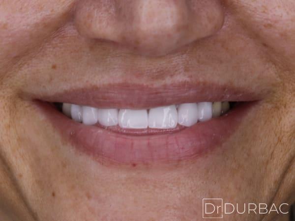 Fatete dentare Emax 6