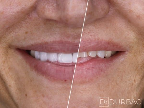Fatete dentare Emax 3
