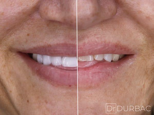 Fatete dentare Emax 2