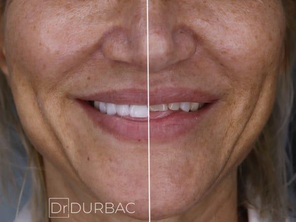 Pacient-154-fatete-dentare-inainte-si-Dupa-v4