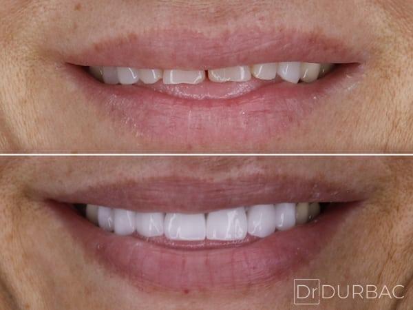 Fatete dentare Emax 4