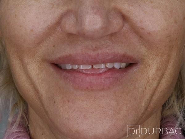 Pacient-154-fatete-dentare-inainte-v2