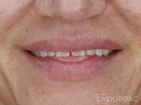 Fatete dentare Emax 5