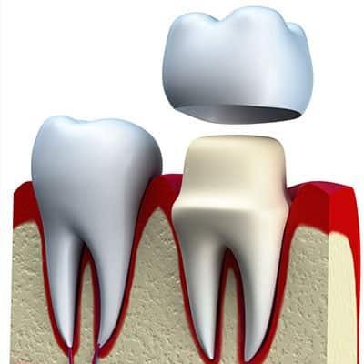 Coroana-dentara-Pret