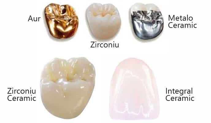 Coronite dentare