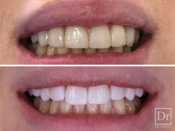 Fatete dentare 8