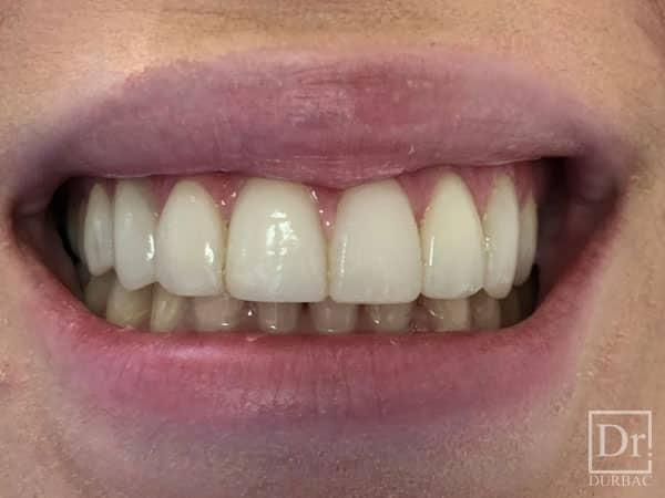 Fatete-dentare-Dr-Durbac-Bucuresti-Inainte