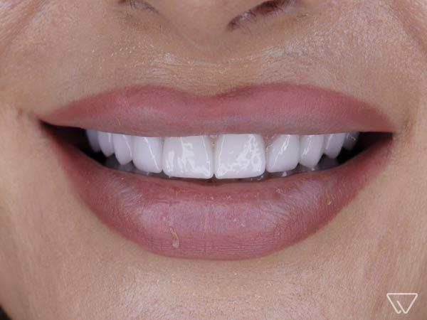 Fatete dentare 12