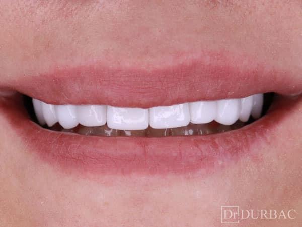 Fatete-dentare-Emax-Dupa-caz-28