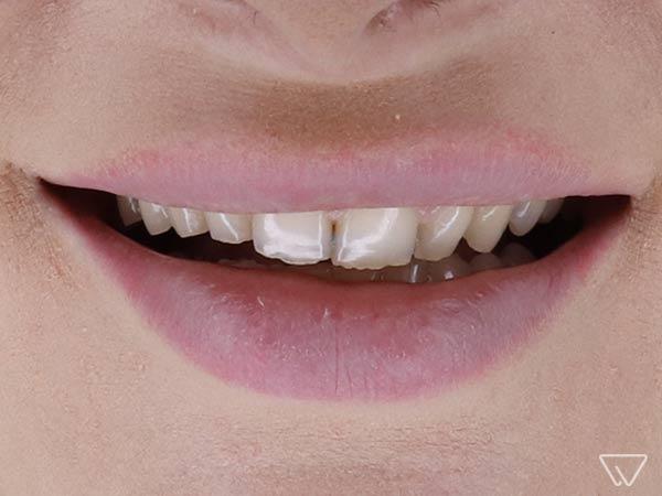 Fatete dentare 14