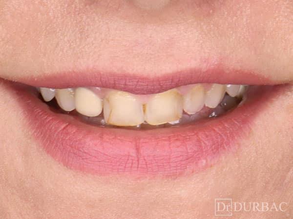 Fatete dentare 11