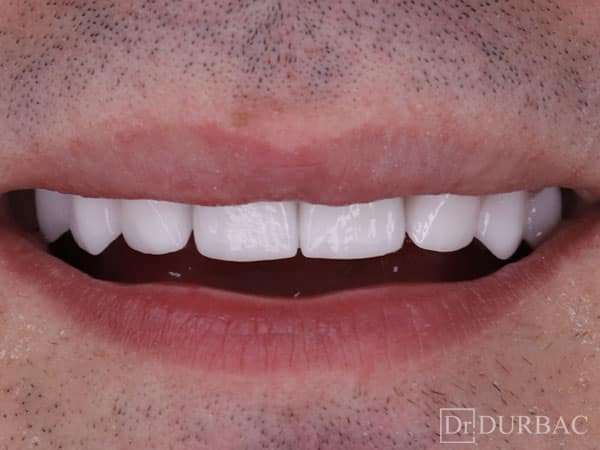 Pacient-164-fatete-dentare-Dupa