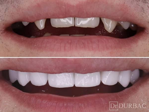 Fatete dentare 16