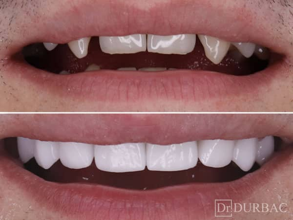 Pacient-164-fatete-dentare-inainte-si-Dupa-v