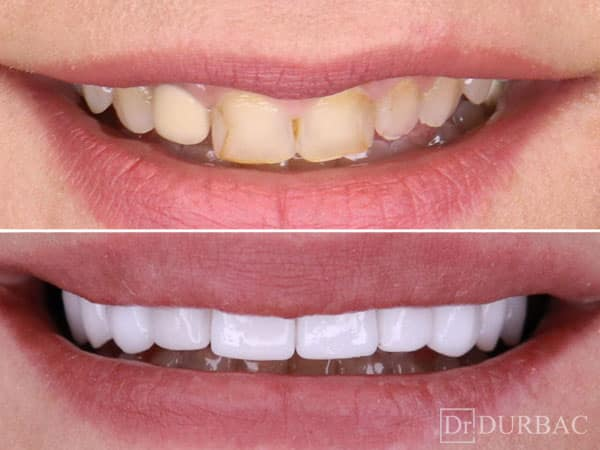 Fatete dentare 10
